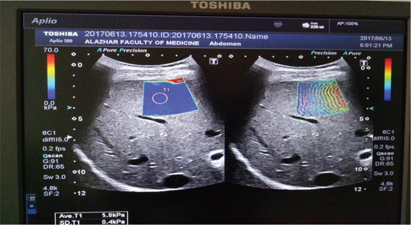 Al azhar assiut medical journal table of contents measurement of liver and spleen stiffness by shear wave elastography as a noninvasive evaluation of esophageal varices in hepatitis c virus related fandeluxe Gallery