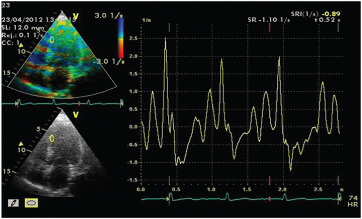 Figure 17 Represents patient no. 14 in the diabetic group showing decreased peak strain rate in the mid-segment of the posterior septal wall.