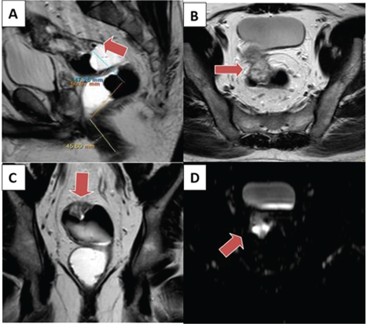 Figure 3 Case 3. (a) Sagittal T2-weighted images show a rectosigmoid mass involving upper rectum with about 15 cm from anal verge. (b) Axial T2-weighted images show endophytic mass of intermediate signal intensity infiltrating rectal wall between 11 o'clock and 12 o'clock position in circumferential location and invading mesorectal fascia to reach to anterior peritoneum. (d) Coronal T2-weighted images show an upper rectal mass and perirectal fat with no evidence of EXMVI or perirectal lymph node. (e) Diffusion-weighted image shows rectal mass of restrictive diffusion that invades mesorectal fascia.